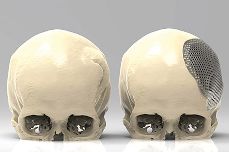 3D printing innovation in medical implants