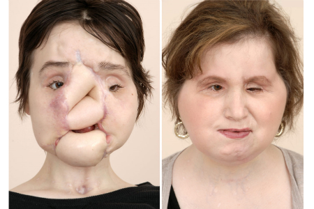 Woman receives total face transplant
