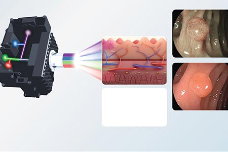 Endoscopic technology: Driving earlier detection