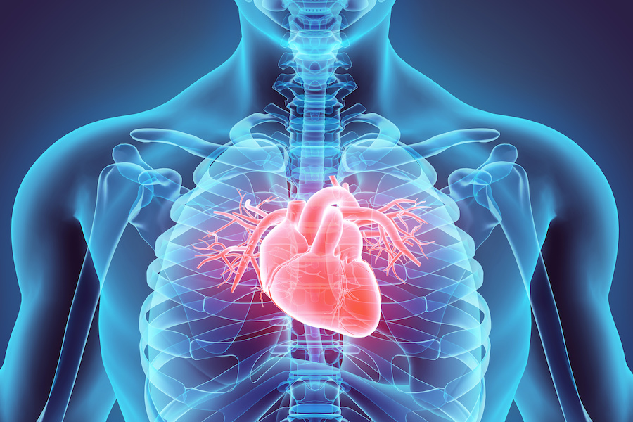 Heart attacks in young more deadly with systemic inflammatory disease